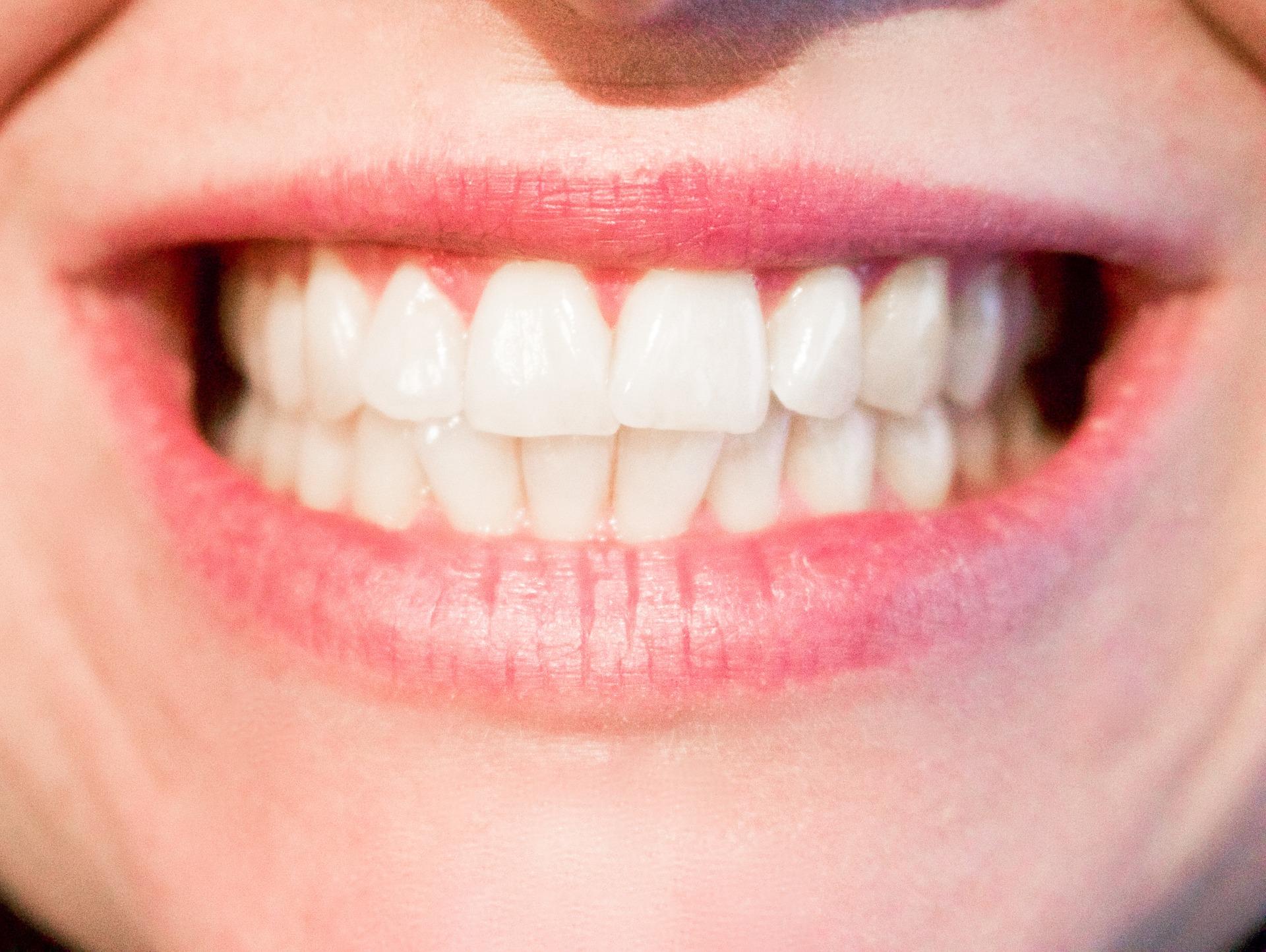 Szerokie możliwości stomatologii estetycznej